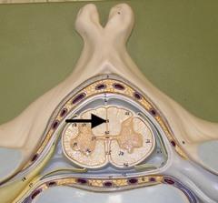 Dorsal median sulcus
