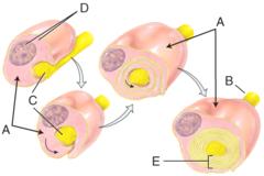 E) myelin sheath
