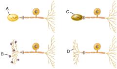 Type I cutaneous mechanoreceptor (Merkel disc)